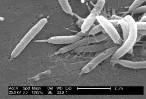 Scanning electron micrograph image of a helicobacter.Credit: CDC/Dr. Patricia Fields, Dr. Collette Fitzgerald (PHIL #5715), 2004