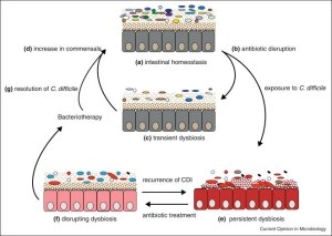 A proposed model for recurrent C. difficile infection and the restoration of the intestinal microbiota through bacteriotherapy.