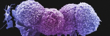 Scanning electron micrograph of lung cancer cells. Credit: Anne Weston, LRI, CRUK, Wellcome Images