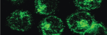 Fluorescent green clathrin forming coated pits on the plasma membrane. Credit: Tony Jackson
